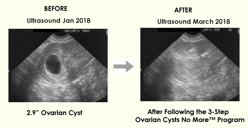 3 steps to cure ovarian cysts